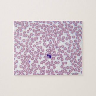 Malarial Blood Cells Jigsaw Puzzle