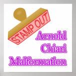 Malformación de Arnold Chiari Posters