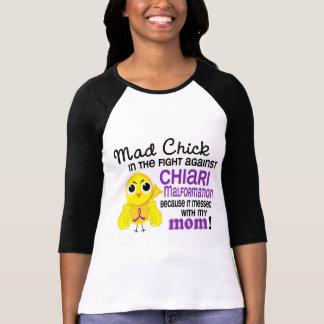 Malformación enojada de Chiari de la mamá del poll Camisetas