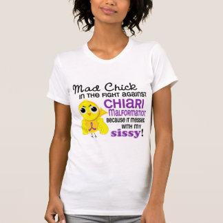 Malformación enojada de Chiari de la mariquita del Camiseta