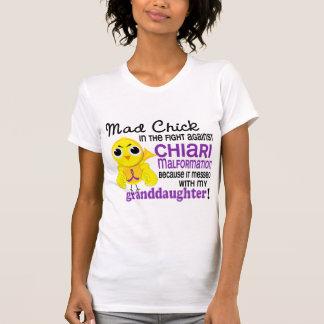 Malformación enojada de Chiari de la nieta del Camisas