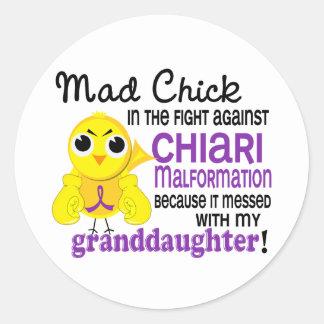 Malformación enojada de Chiari de la nieta del Pegatina Redonda