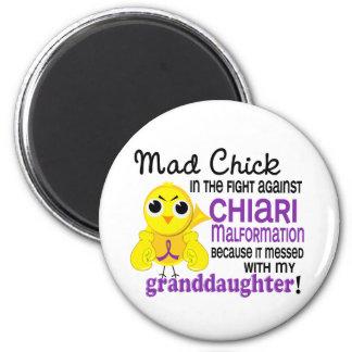 Malformación enojada de Chiari de la nieta del pol Imán Redondo 5 Cm