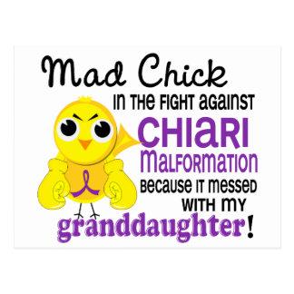Malformación enojada de Chiari de la nieta del Postal