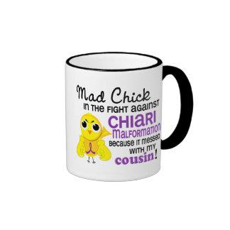Malformación enojada de Chiari del primo del pollu Taza De Café