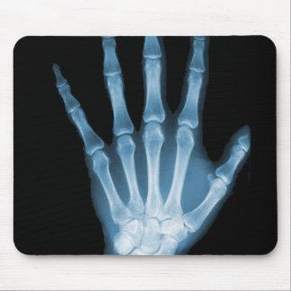Mano azul del esqueleto de la radiografía alfombrilla de ratones