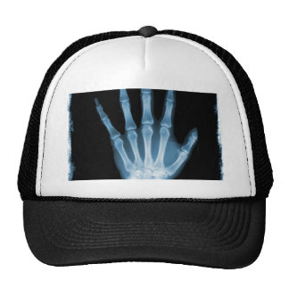 Mano azul del esqueleto de la radiografía gorro de camionero