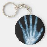 Mano azul del esqueleto de la radiografía llavero personalizado