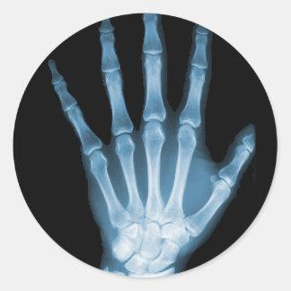 Mano azul del esqueleto de la radiografía pegatina redonda