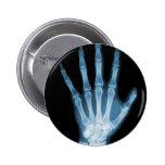 Mano azul del esqueleto de la radiografía pins
