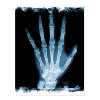 Mano azul del esqueleto de la radiografía postales