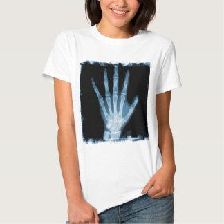 Mano azul del esqueleto de la radiografía remera