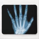 Mano azul del esqueleto de la radiografía tapete de raton