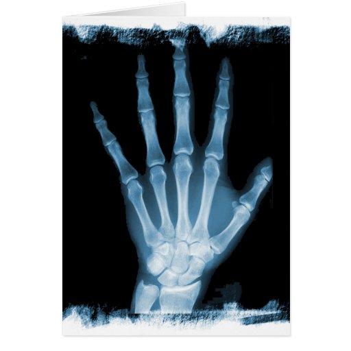 Mano azul del esqueleto de la radiografía felicitaciones