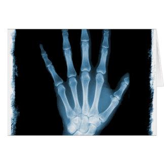 Mano azul del esqueleto de la radiografía tarjeta de felicitación