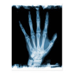 Mano azul del esqueleto de la radiografía tarjeta postal