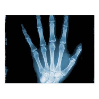 Mano azul del esqueleto de la radiografía tarjetas postales