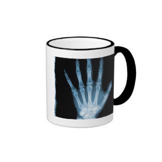 Mano azul del esqueleto de la radiografía tazas