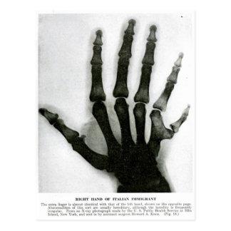 Mano de la radiografía con la postal adicional del