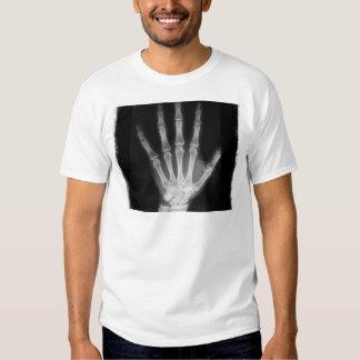 Mano del esqueleto de la radiografía de B&W Camisas