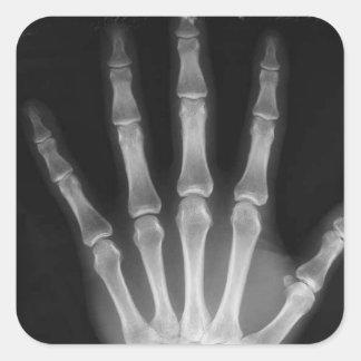 Mano del esqueleto de la radiografía de B&W Pegatina Cuadrada