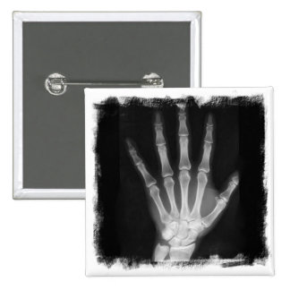 Mano del esqueleto de la radiografía de B&W Pin Cuadrado