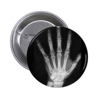 Mano del esqueleto de la radiografía de B&W Pin Redondo De 2 Pulgadas
