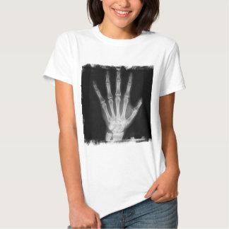 Mano del esqueleto de la radiografía de B&W Playeras