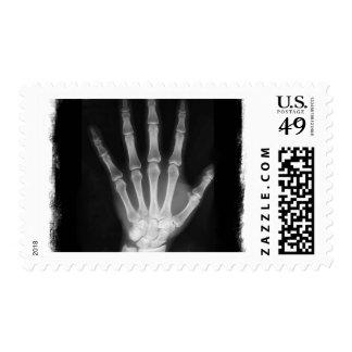 Mano del esqueleto de la radiografía de B&W Franqueo