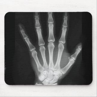 Mano del esqueleto de la radiografía de B&W Tapete De Raton