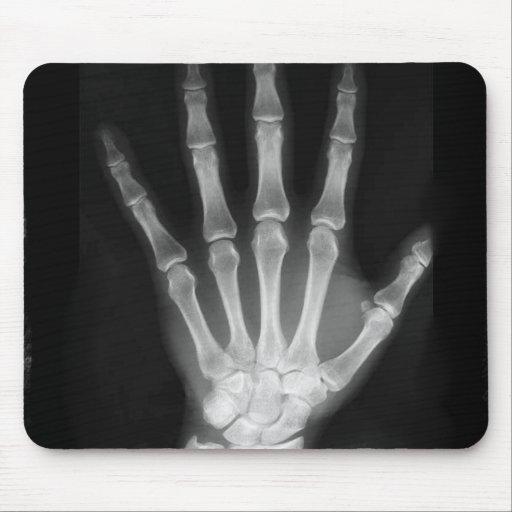 Mano del esqueleto de la radiografía de B&W Tapete De Ratón