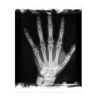 Mano del esqueleto de la radiografía de B&W Tarjeta Postal