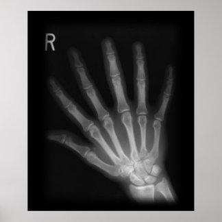 Mano derecha adicional de la radiografía del dígit póster