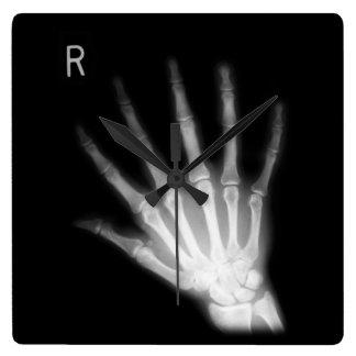 Mano derecha adicional de la radiografía del reloj cuadrado