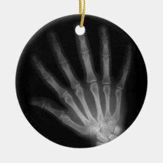 Mano izquierda adicional de la radiografía del adorno navideño redondo de cerámica