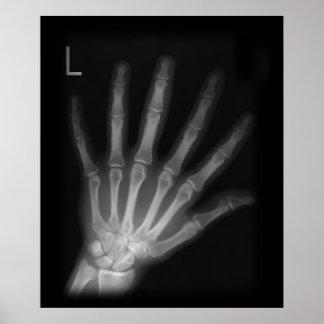 Mano izquierda adicional de la radiografía del díg póster