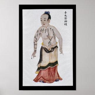 Mano meridiana Taiyin del pulmón de la acupuntura Póster