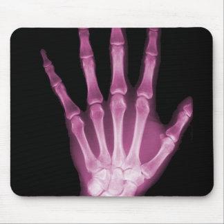Mano rosada del esqueleto de la radiografía alfombrillas de ratón