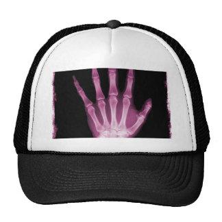 Mano rosada del esqueleto de la radiografía gorros