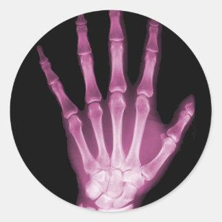Mano rosada del esqueleto de la radiografía pegatina redonda