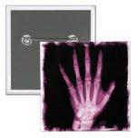 Mano rosada del esqueleto de la radiografía pin