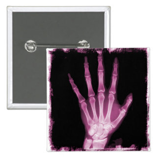Mano rosada del esqueleto de la radiografía pin cuadrado