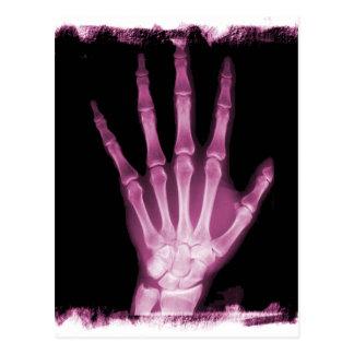 Mano rosada del esqueleto de la radiografía postal