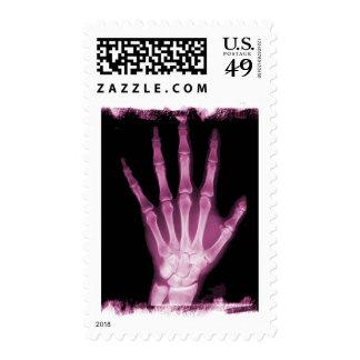 Mano rosada del esqueleto de la radiografía sello