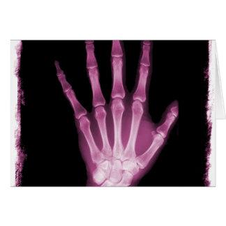 Mano rosada del esqueleto de la radiografía tarjeta de felicitación
