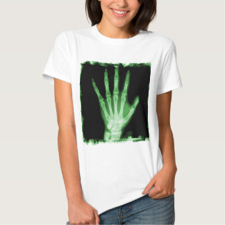 Mano verde del esqueleto de la radiografía camisas