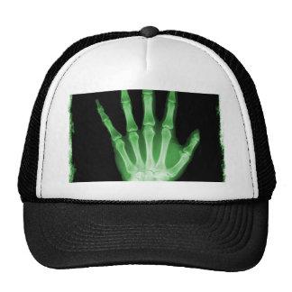Mano verde del esqueleto de la radiografía gorras de camionero
