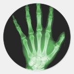 Mano verde del esqueleto de la radiografía pegatina redonda
