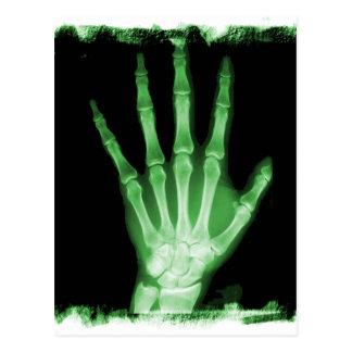 Mano verde del esqueleto de la radiografía postal