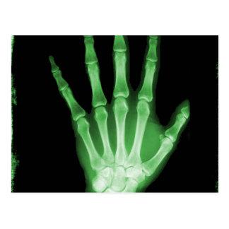 Mano verde del esqueleto de la radiografía postales